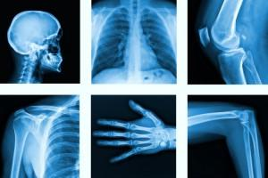 how to become a radiology in canada
